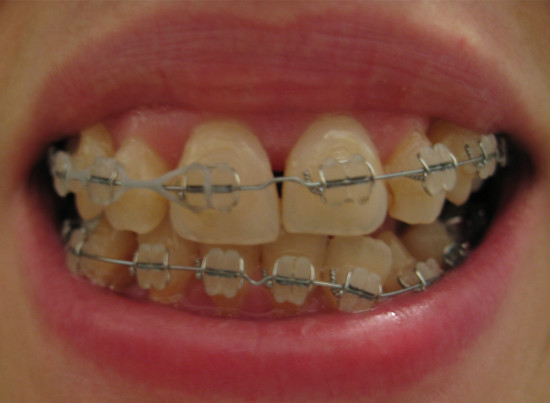 Adventures in Orthodontics, Part 5; or, 1 year, 1 month, 10 days